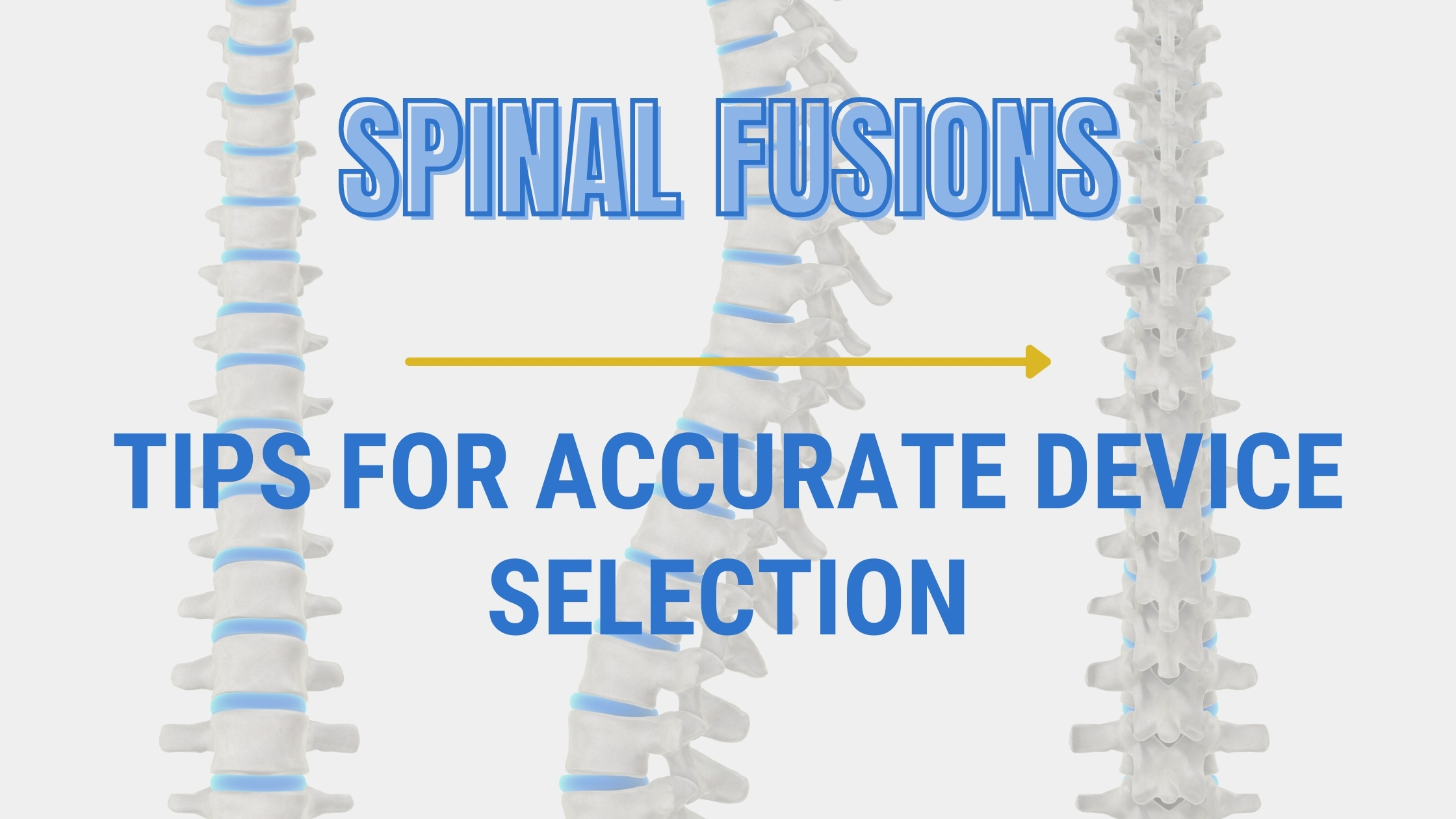 Spinal Fusion: Tips for Accurate Device Selection